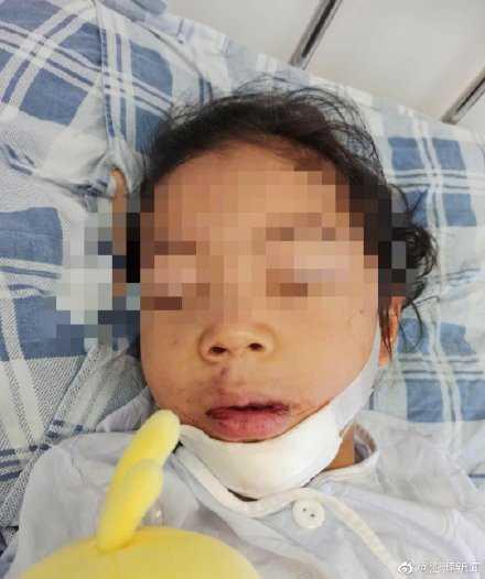 女童摔落重傷。(圖/澎湃新聞)