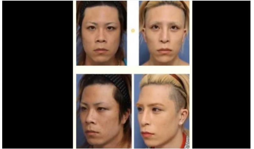 日本「帝王級牛郎」羅蘭坦承整形!(圖/Youtube)