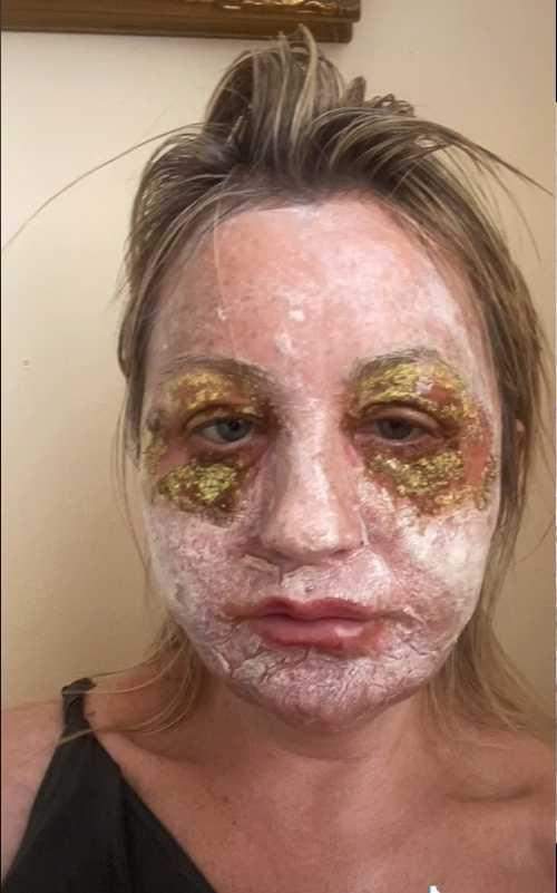 一名英國婦女花了7萬除皺,不過復原過程相當痛苦。(圖/翻攝自amandaw12670抖音