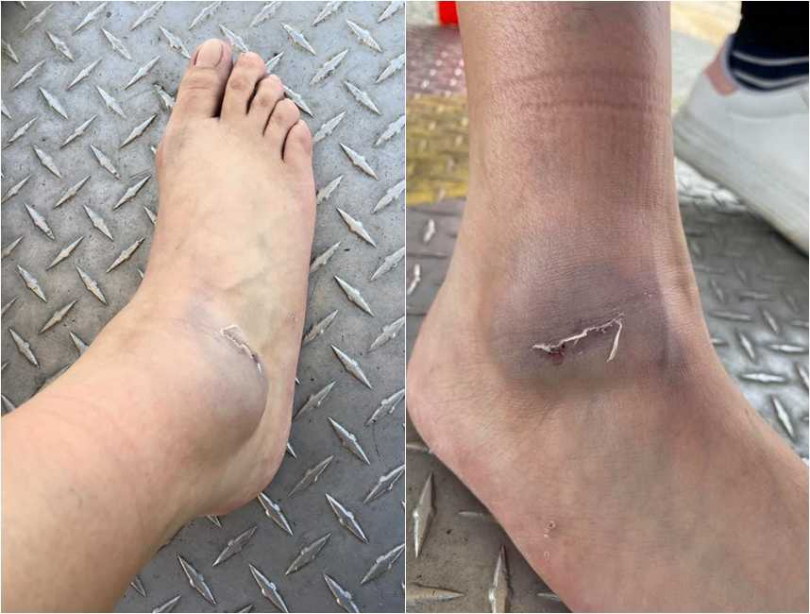 傷者的腳踝因為重甩撞到鐵欄杆,當場黑掉腫起來。(圖/翻攝自爆料公社)