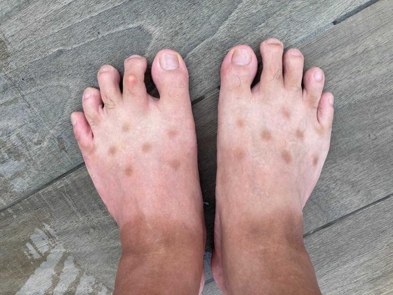 日本網友腳部長出不明褐色斑點。(圖/反王ケンラウヘル Twitter)