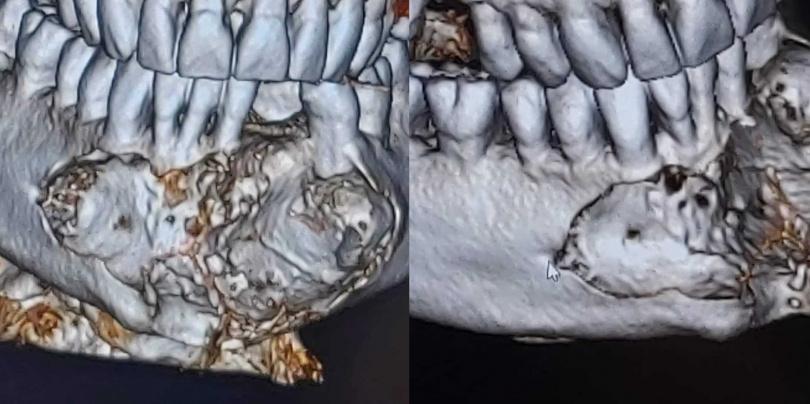 維金森下顎的腫瘤屬於罕見的「造釉細胞瘤」。(圖/FB)