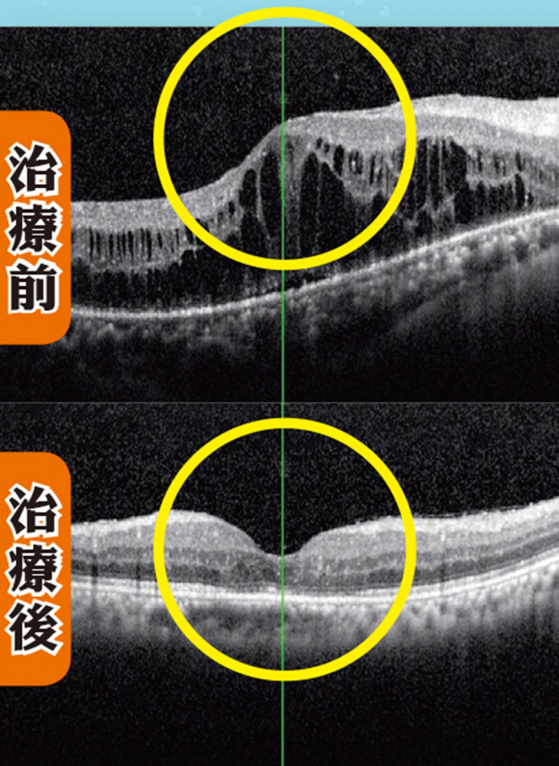 視網膜血管滲漏易造成黃斑部水腫,在注射「新型長效類固醇」藥劑之後,黃斑部水腫才消失,恢復正常凹洞狀。(圖/醫師提供)