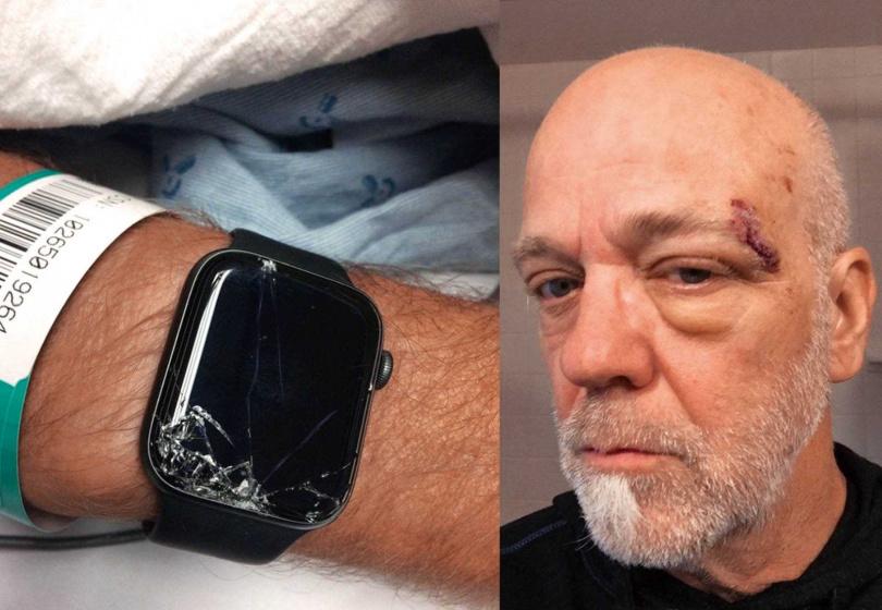 Galaxy Watch3和Apple Watch(如圖)一樣,具備跌倒偵測功能,此功能曾成功搶救一位喜歡越野運動的美國長者BobBurdett。(圖/翻攝自Bob臉書)
