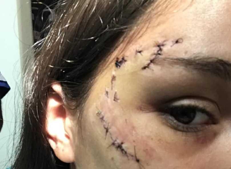 一名阿根廷少女本來想熱情環抱狗狗拍照,但可能是動作觸犯狗兒,慘被「啃入口中」,整張臉縫了40針。(圖/翻攝自推特)