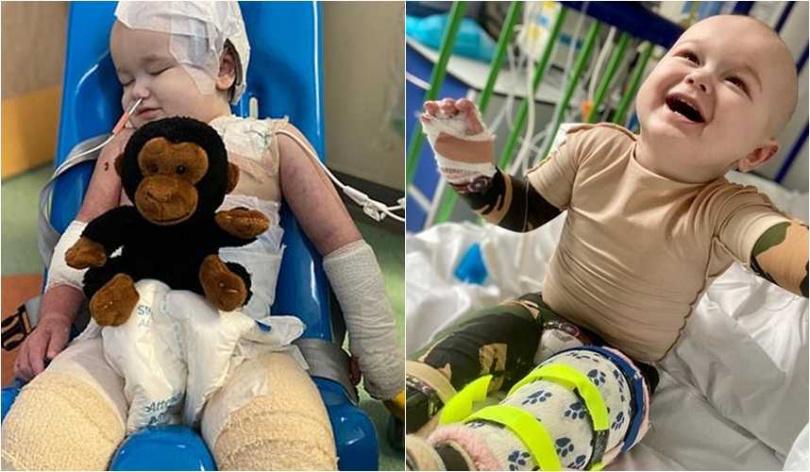 年僅一歲的小男孩Jenson Smith,因為嚴重燙傷,多次經過手術,仍嶄露勇敢笑容。(圖/翻攝dailymail)
