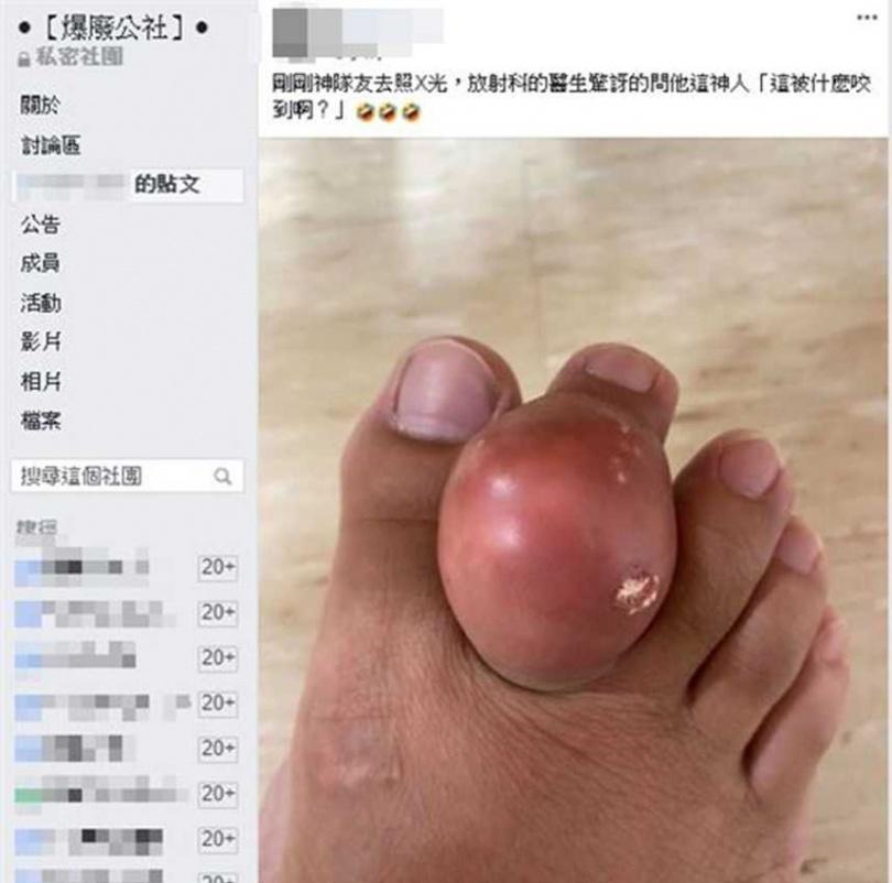 有網友腳長巨大「痛風石」,最後擠爆大膿球,畫面超噁心。(圖/翻攝臉書)
