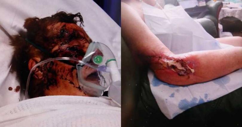瑪麗被咬到失去了一根手指,手臂見骨、肌肉也受損。(圖/翻攝太陽報)