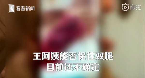 醫師表示,後續還要視手術狀況,才知道能否保住王婦的雙腿。