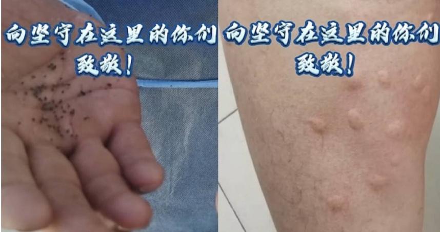 蚊蟲王國!新疆邊境駐守警察被叮到全身包 一巴掌揮下「打死逾百隻蚊子」