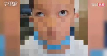 6歲男童模仿App凸眼特效 竟「徒手挖眼球」…左眼外凸險失明