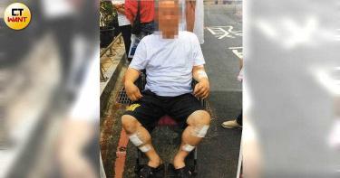 【監委很賣力3】幫朋友出氣 黑衣人將住戶打到坐輪椅