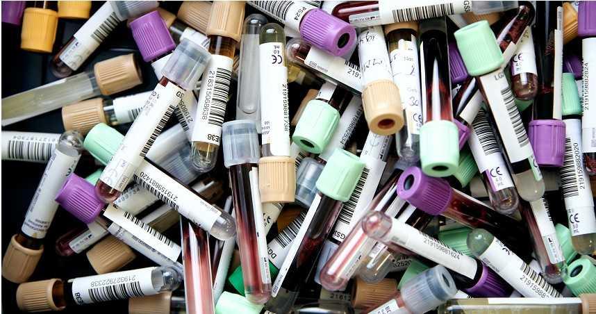 血型決定你是否容易感染新冠? 研究:O型染疫率低、A型最易感染