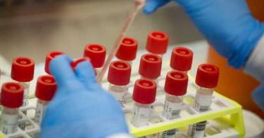 美生技藥廠稱發現抗體能治療、預防新冠肺炎 股價應聲大漲10%