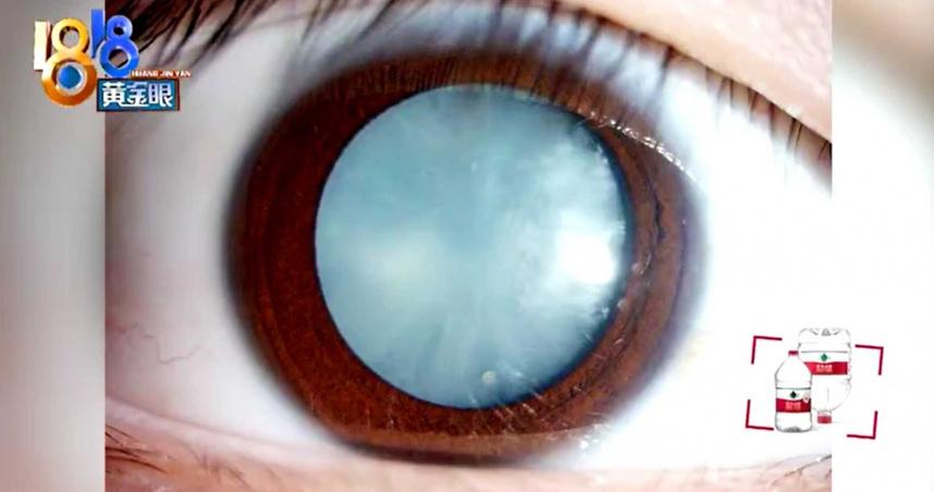 15歲男可樂當水喝!半年後血糖超標「瞳孔發白」慘失明