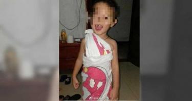 5歲童遭鎖校車內…60度高溫悶9小時脫水亡 父痛心:他脫光衣服求救