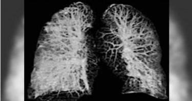 歐洲首2起確診案例肺部重創!出現「毛玻璃狀斑塊」濃液塞滿