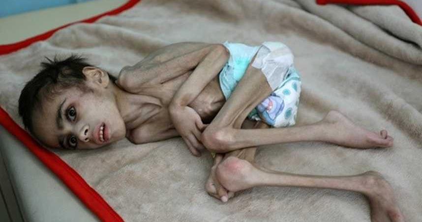 葉門7歲男童體重僅7公斤! 全身瘦到剩骨頭…蜷曲病床瀕死