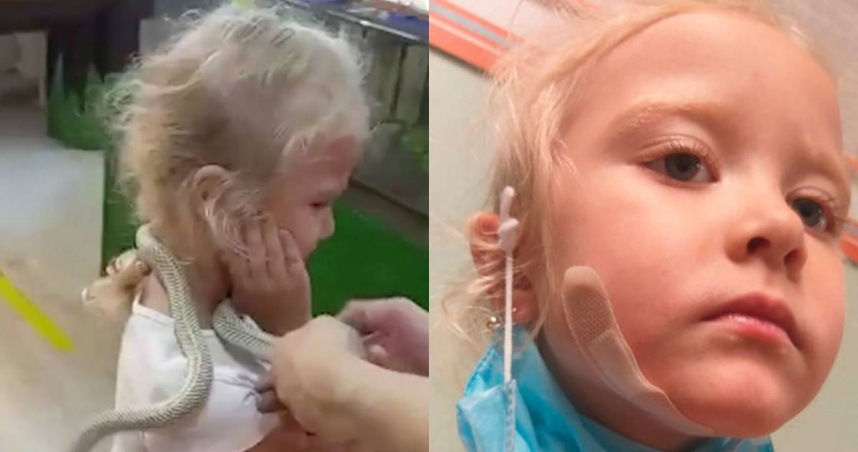 5歲女童脖子掛蛇互動 身上飄肉香、牠誤認成獵物狠咬