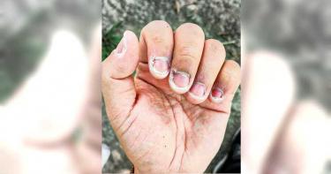 清潔員遊走最危險區域 消毒一次比採檢更久!網見「雙手乾裂照」心疼:感謝你們