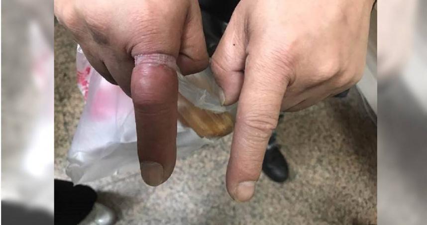 遭鋼戒鎖死4天!基隆男「手指變紫色」痛爆 消防員放大絕神救援