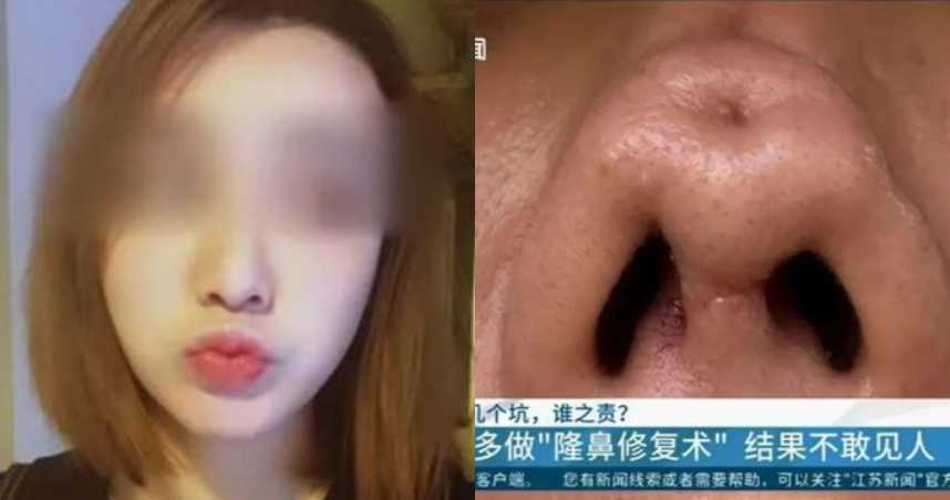 正妹花10萬隆鼻!歷經4回手術「凹大洞」…鼻頭歪扭變形毀容