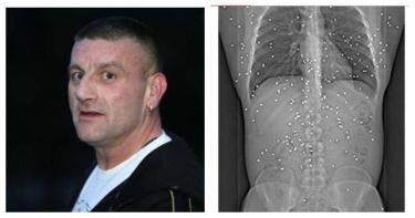 15年前遭掃射!衰男活到現在「150粒子彈」卡體內 哀嚎:為何還在世