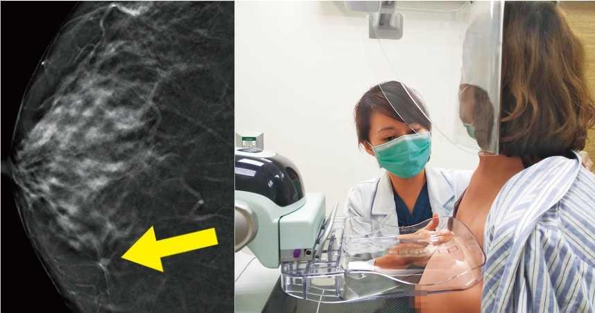 年輕更奪命3/好哀怨!定期篩檢卻沒檢查出腫瘤 關鍵出在乳房結構
