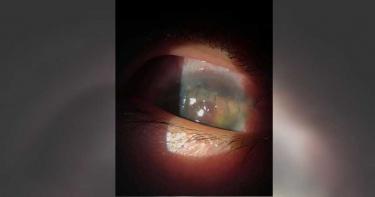 模仿網紅「開瓶神技」 童遭噴飛瓶蓋砸傷右眼險失明