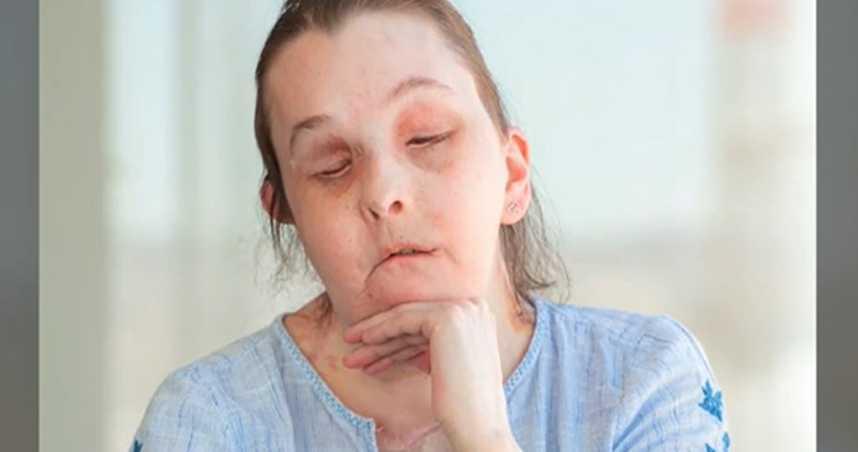 她遭前夫潑鹼毀容眼瞎 整形73次…歷經20小時移植手術「換臉重生」