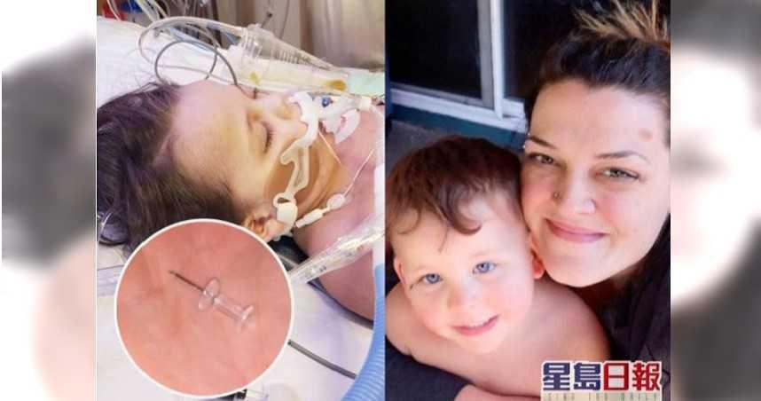 4歲童誤吞圖釘刺穿肺 腦缺氧急救3天不治