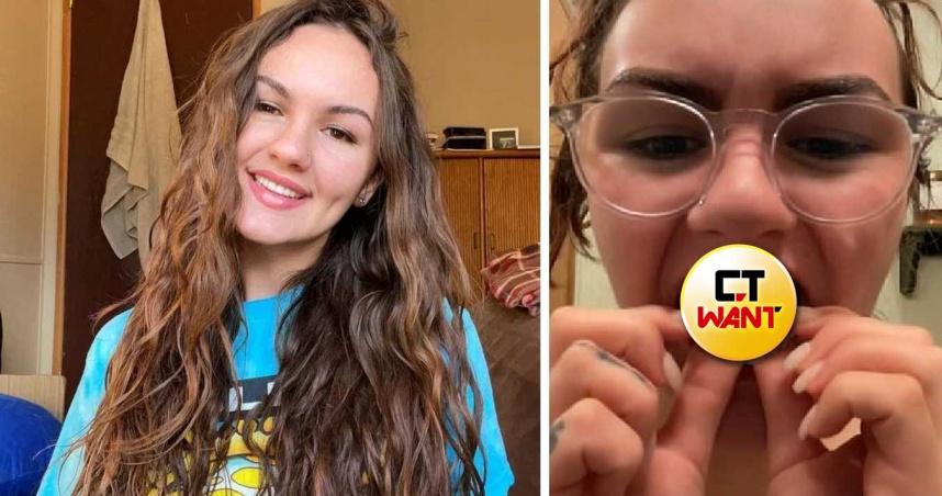 22 歲美女染毒6年「牙齒被侵蝕光」! 自揭「冰毒真相」影片勸世爆紅
