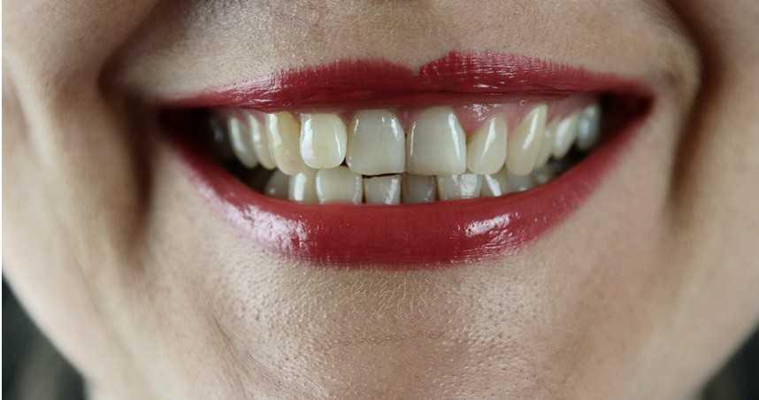 25歲女只喝手搖飲「滿嘴10多顆發黑爛牙」 醫揭易蛀牙原因