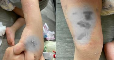 併桌客人打翻熱湯灑3歲男童 手腳嚴重燙傷大面積起水泡